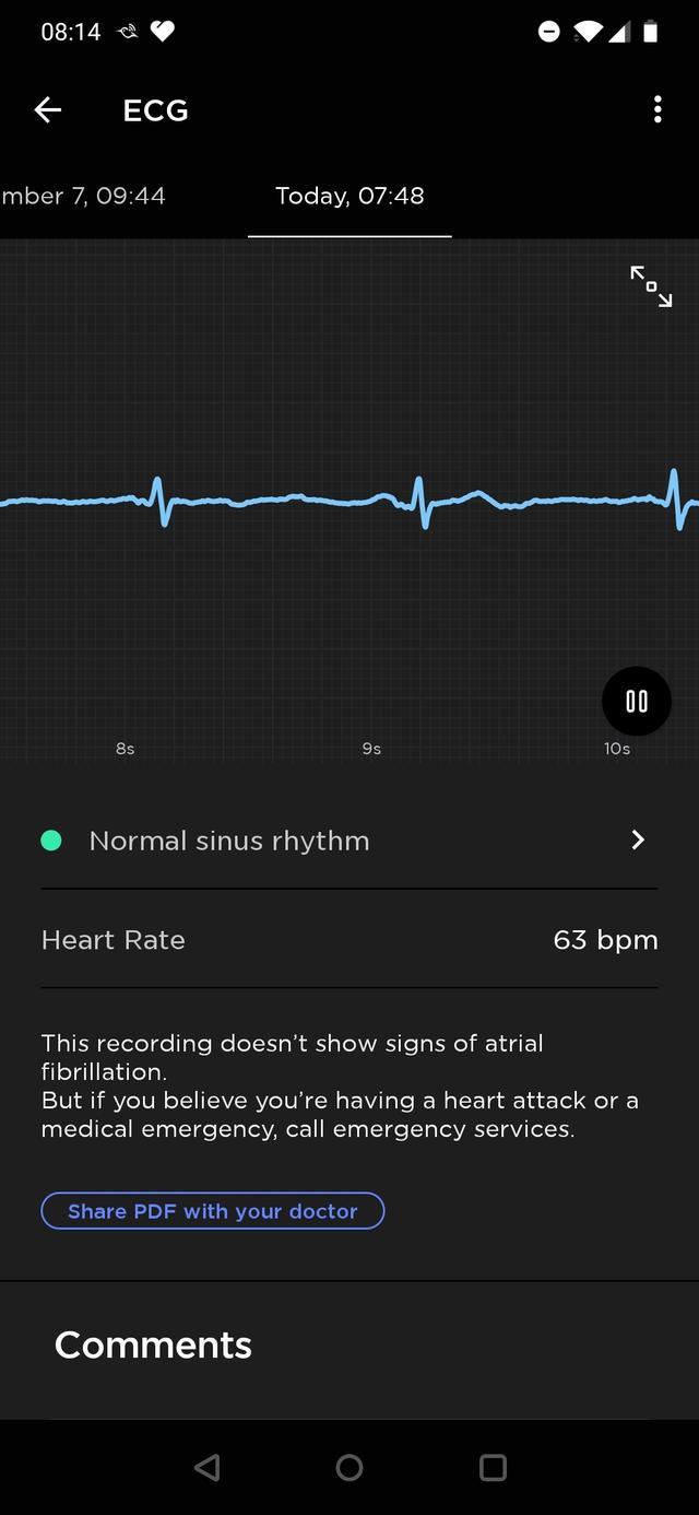 Withings Move ECG hart 2